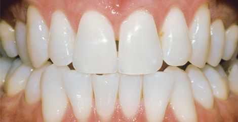 Reálni zuby po bělení s proužky Crest 3D White Professional Effects