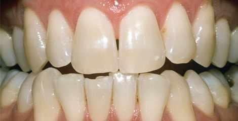 Reálni zuby před bělením s proužky Crest 3D White Professional Effects