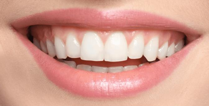 Zuby po bělení s proužky Crest 3D White Professional Effects