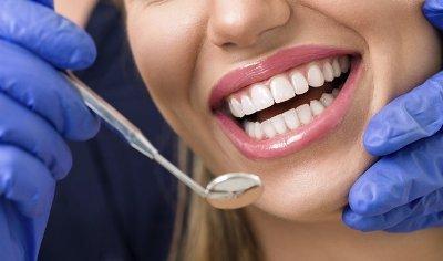 Bělení u zubaře 2