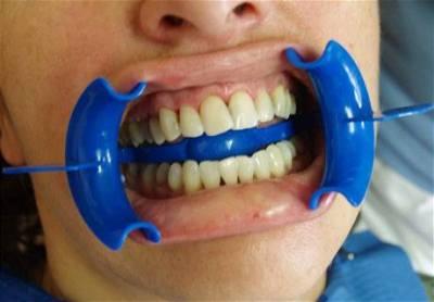 Bělení u zubaře