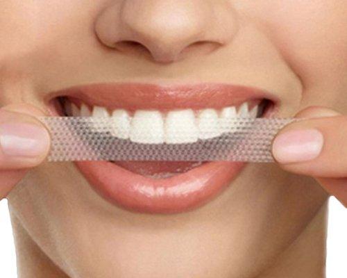 Bělení zubů doma