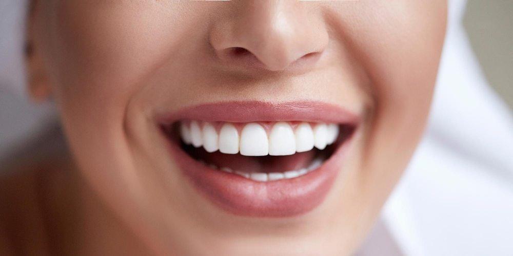 Bělostný úsměv