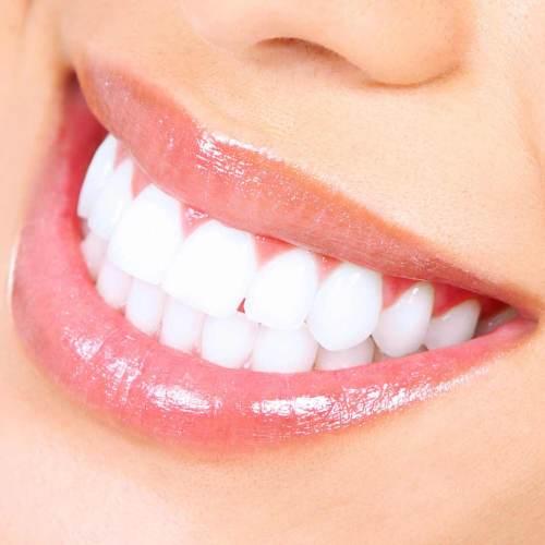 Bílý úsměv 2