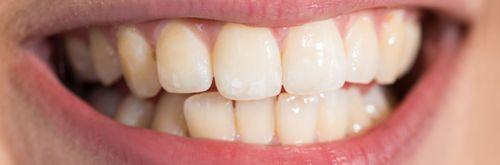 Bílý úsměv - pasta