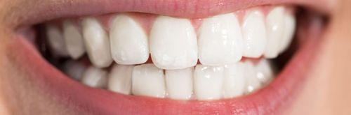 Bílý úsměv - pásky