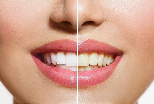 Žloutnutí zubů